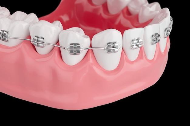 Primo piano denti di salute di processo con tutore. messa a fuoco selettiva. rendering 3d.