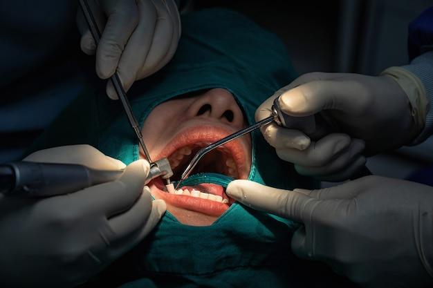 Primo piano dentista e assistente che operano per il controllo e la pulizia dei denti presso la clinica odontoiatrica