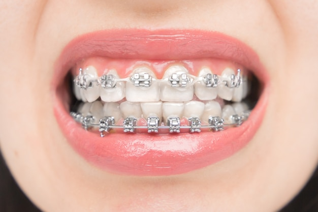 Primo piano di apparecchi ortodontici. staffe sui denti dopo lo sbiancamento. staffe autoleganti con fascette metalliche ed elastici grigi o elastici
