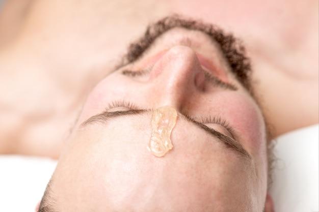 Primo piano di cera liquida tra le sopracciglia di un giovane uomo prima della ceretta nel salone di bellezza