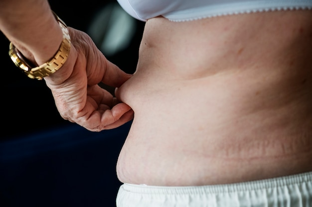 Primo piano di donna anziana obesa