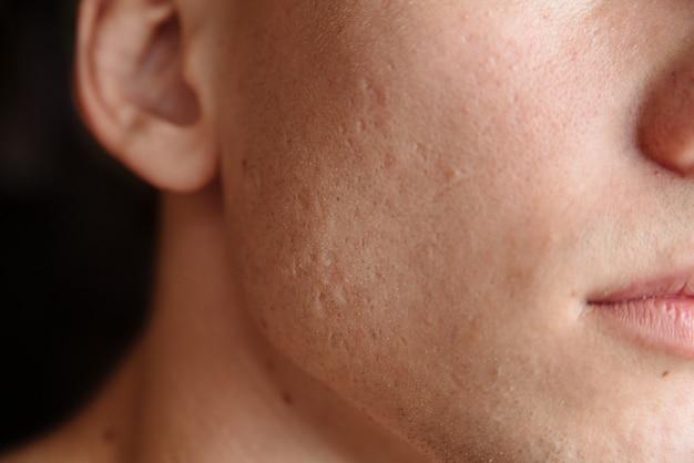 Primo piano di pelle problematica con profonde cicatrici da acne sulla guancia di un giovane