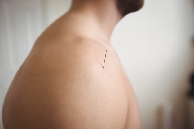 Primo piano di un paziente che ottiene aghi asciutti