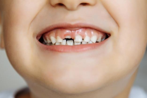 Primo piano di un piccolo bambino senza denti sorridente