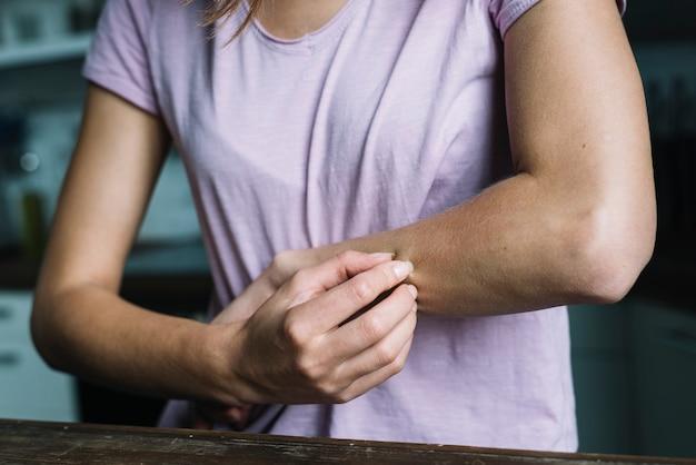 Primo piano di una donna che le pizzica il braccio