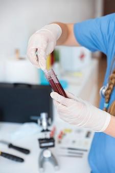 Primo piano di una mano del veterinario che lavora con il campione di sangue