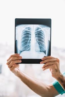 Primo piano di una mano maschile medico tenendo radiografia del torace