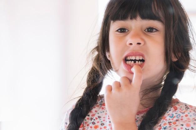 Primo piano di una ragazza che mostra i suoi denti rotti