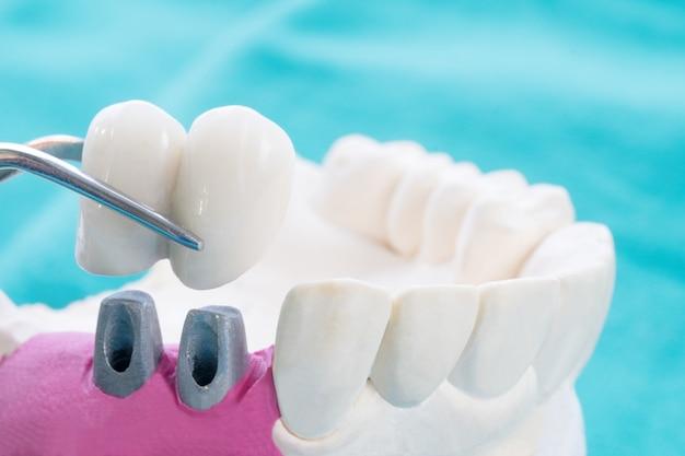 Primo piano implan e corona di fissaggio del supporto per dente modello implan.