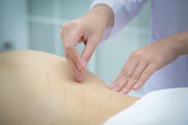 Primo piano, paziente che ottiene agopuntura dall'agopuntore alla clinica per il trattamento della medicina cinese.