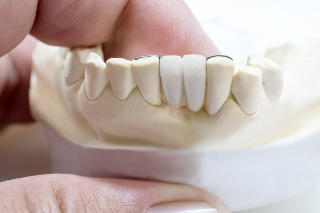 Primo piano / ponte del maryland dentale / restauro dell'attrezzatura coronarica e del ponte e modello express fix.
