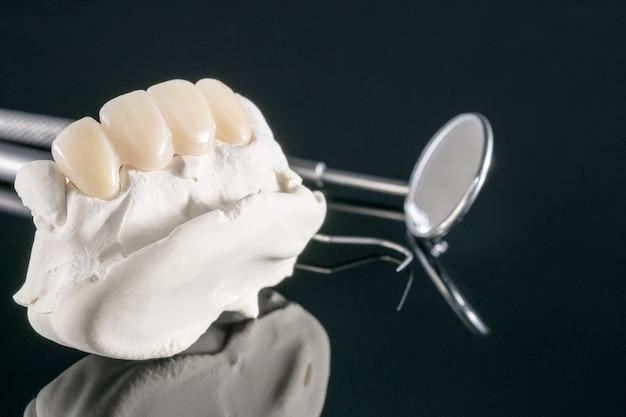 Primo piano / protesi o protesi / protesi dentaria e ponte impianti odontoiatrici e restauro del modello express fix.