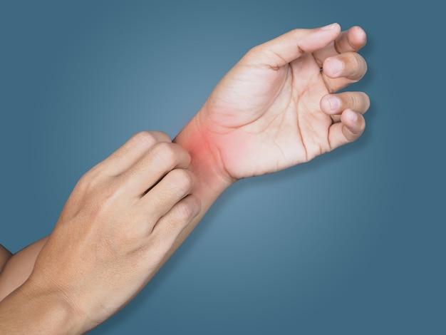 Primo piano sul corpo con graffi alla mano sul braccio da prurito con malattie della pelle, problemi di pelle secca, dermatite o eczema.