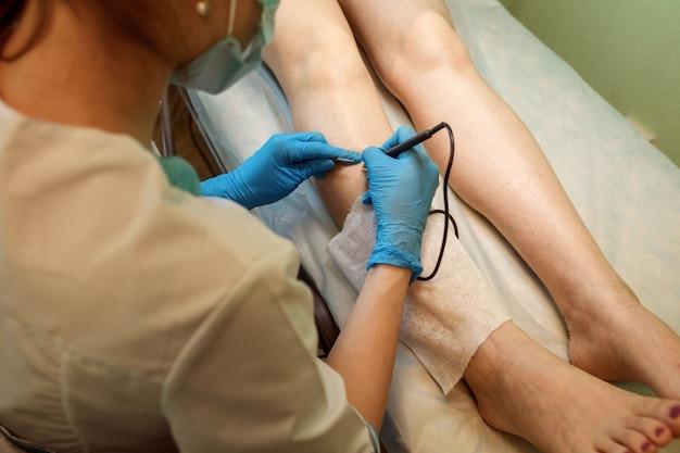 Primo piano vista del medico facendo elettroepilazione, depilazione al cliente.