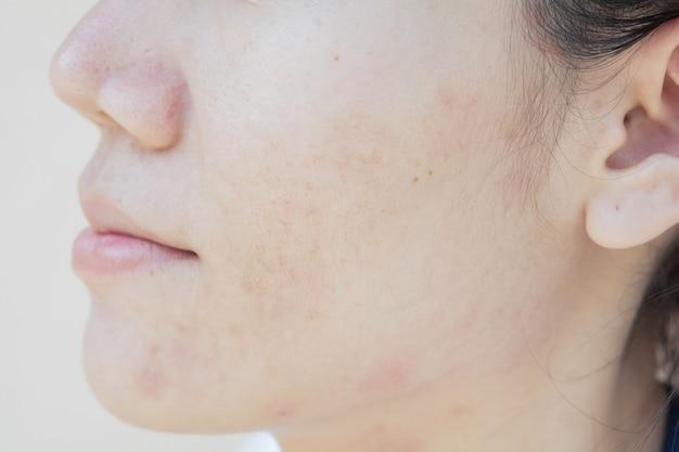 Problemi di pelle e macchie scure. cicatrice da acne sul viso