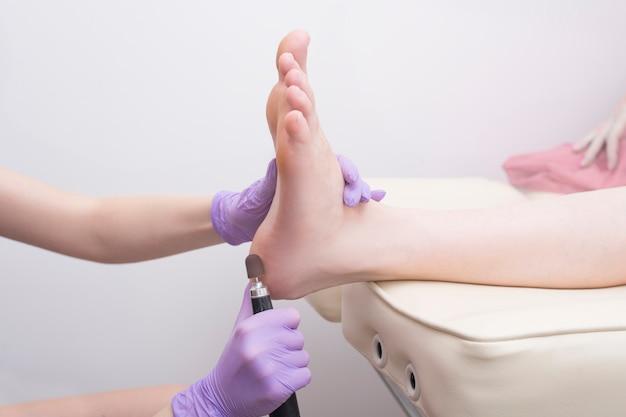 Processo di trattamento della pelle del piede