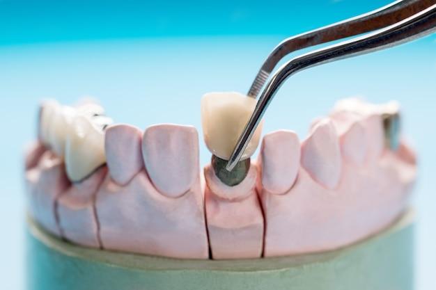 Protesi dentale del primo piano o protesi / corona e ponte e restauro del modello express fix.