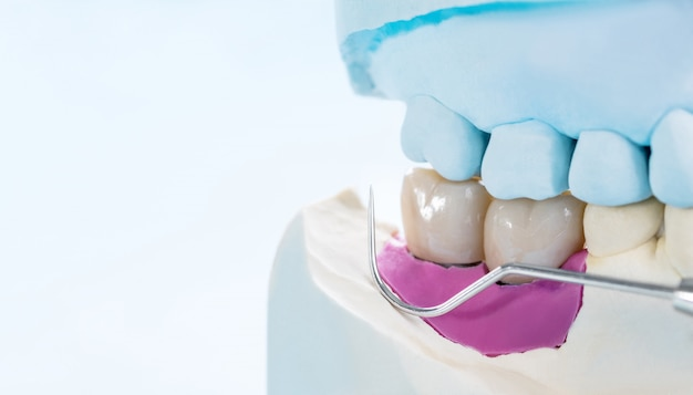 Protesi dentaria dell'impianto del primo piano