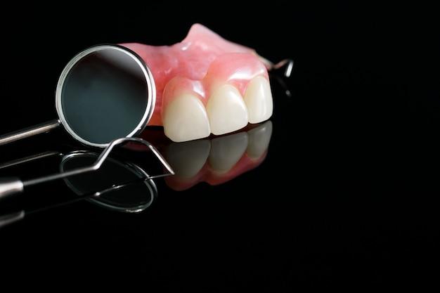 Protesi dentaria isolatica - parte superiore della protesi parziale.