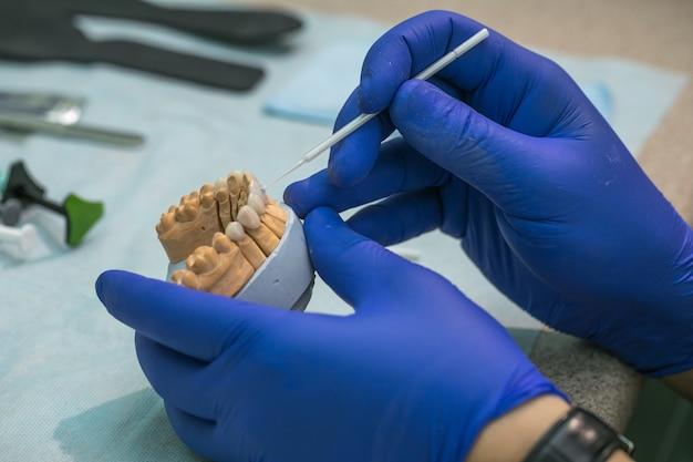 Protesi dentarie, protesi dentarie, lavori di protesi. mani protesiche mentre si lavora sulla protesi, uno studio e un tavolo con strumenti dentali