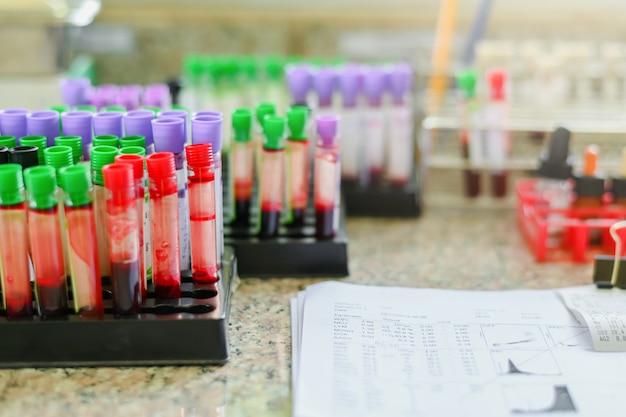 Provetta per analisi del sangue delle apparecchiature mediche intasata