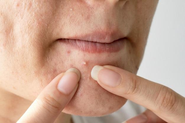 Pus dell'acne, foto alta vicina della pelle incline dell'acne