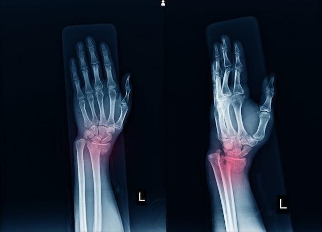 Radiografia dell'articolazione del polso sinistro frattura con spostamento distale all'estremità del raggio sinistro.