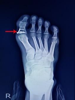 Radiografia della frattura del piede