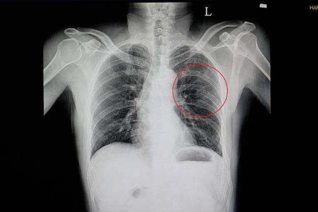 Radiografia toracica di una parete toracica smussata che ha ferito il paziente