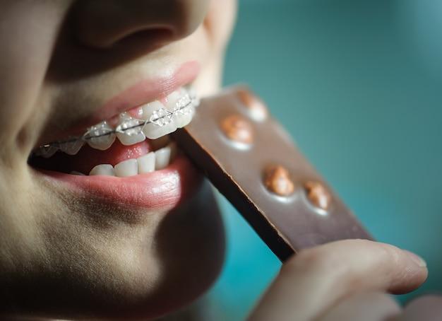 Ragazza che mangia cioccolato, con parentesi graffe di denti in ceramica