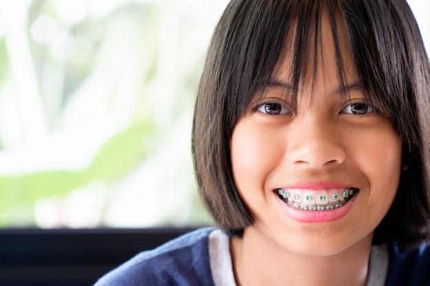 Ragazza con i denti delle parentesi graffe che sorride e felice