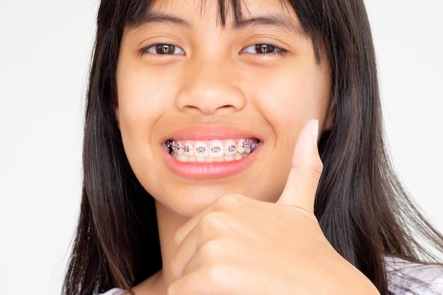 Ragazza con i denti di parentesi graffe che sorride e felice