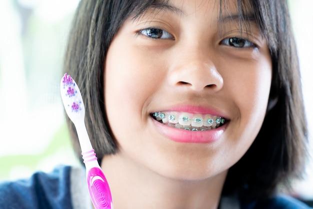 Ragazza con le parentesi graffe dentali che sorride e felice