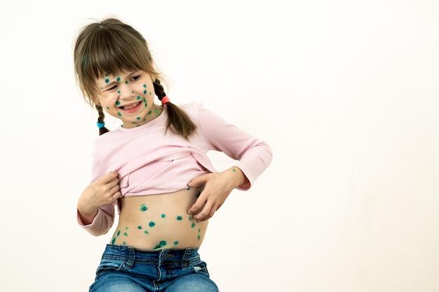 Ragazza del bambino coperta di eruzioni verdi sul viso e sullo stomaco