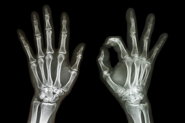 Raggi x di entrambe le mani con il segno ok