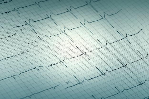 Rapporto grafico ecg su carta, elettrocardiogramma su modulo cartaceo come sfondo