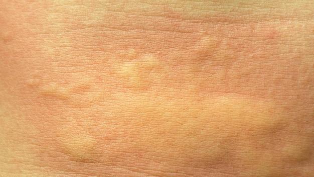 Rash, orticaria, medicina, dermatite, salute, prurito, allergia, allergia, corpo