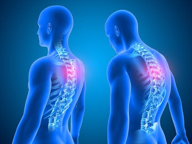 Rendering 3d di uno sfondo medico che mostra una buona e cattiva postura con la colonna vertebrale evidenziata