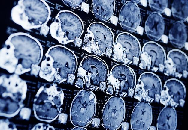 Risonanza magnetica di un paziente con un tumore nel tronco encefalico. neurochirurgia, cancro, chirurgia.