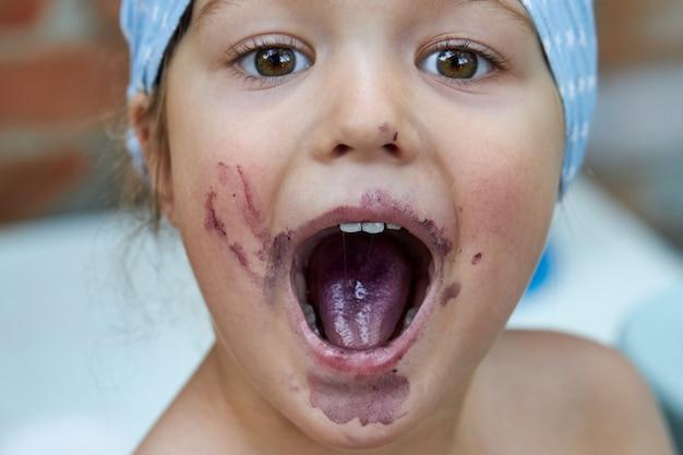 Ritratto di una bambina con la bocca aperta dopo aver mangiato bacche di gelso