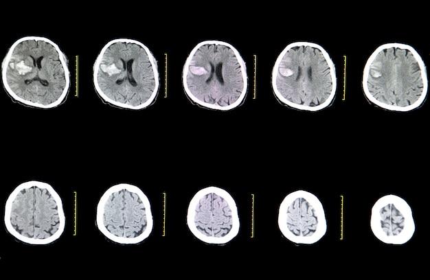 Scansione cerebrale ct di un paziente colpito da ictus