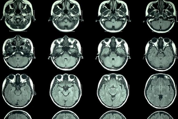 Scansione mri del cervello