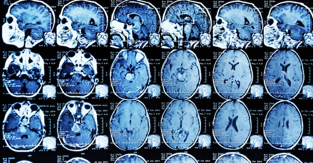 Scansione mri di un paziente con un tumore nel tronco cerebrale.