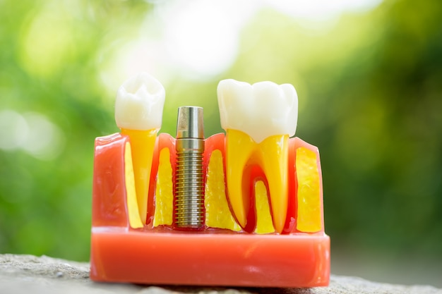 Set di strumenti dell'attrezzatura del dentista, protesi che mostra l'impianto
