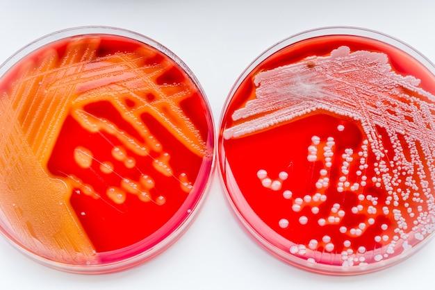 Staphylococcus aureus e streptococcus pyogenes