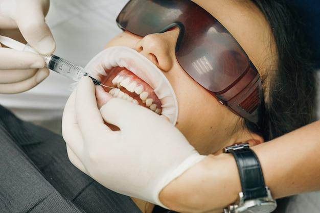 Stomatologo che imbianca i denti per il paziente in una clinica