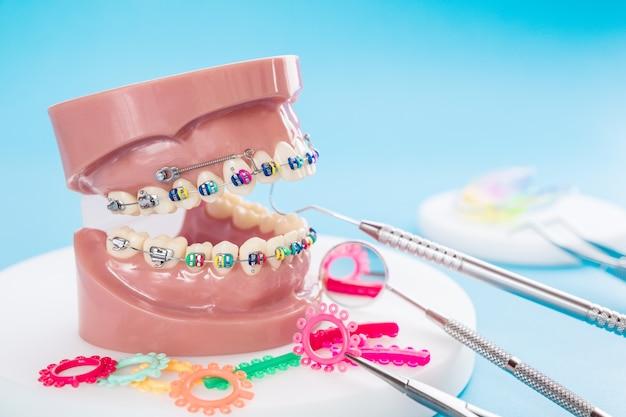 Strumenti del dentista e modello ortodontico su fondo blu.