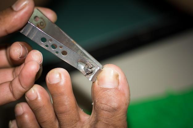 Tagliare le unghie