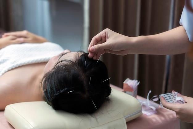 Terapeuta dando un ago da trattamento di agopuntura sulla testa per il trattamento del trapianto di capelli