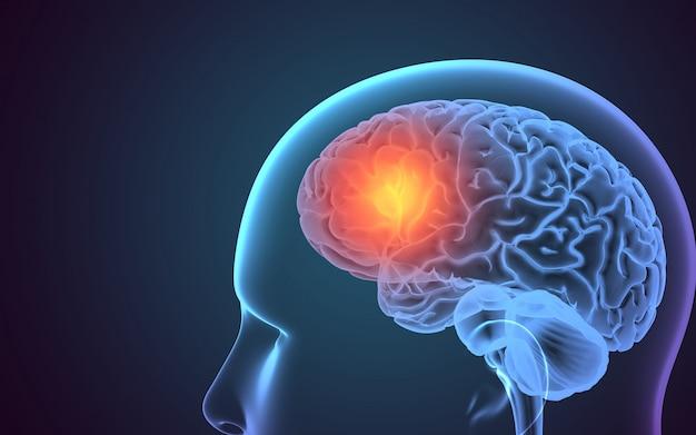 Testa a raggi x con evidenziazione nel cervello